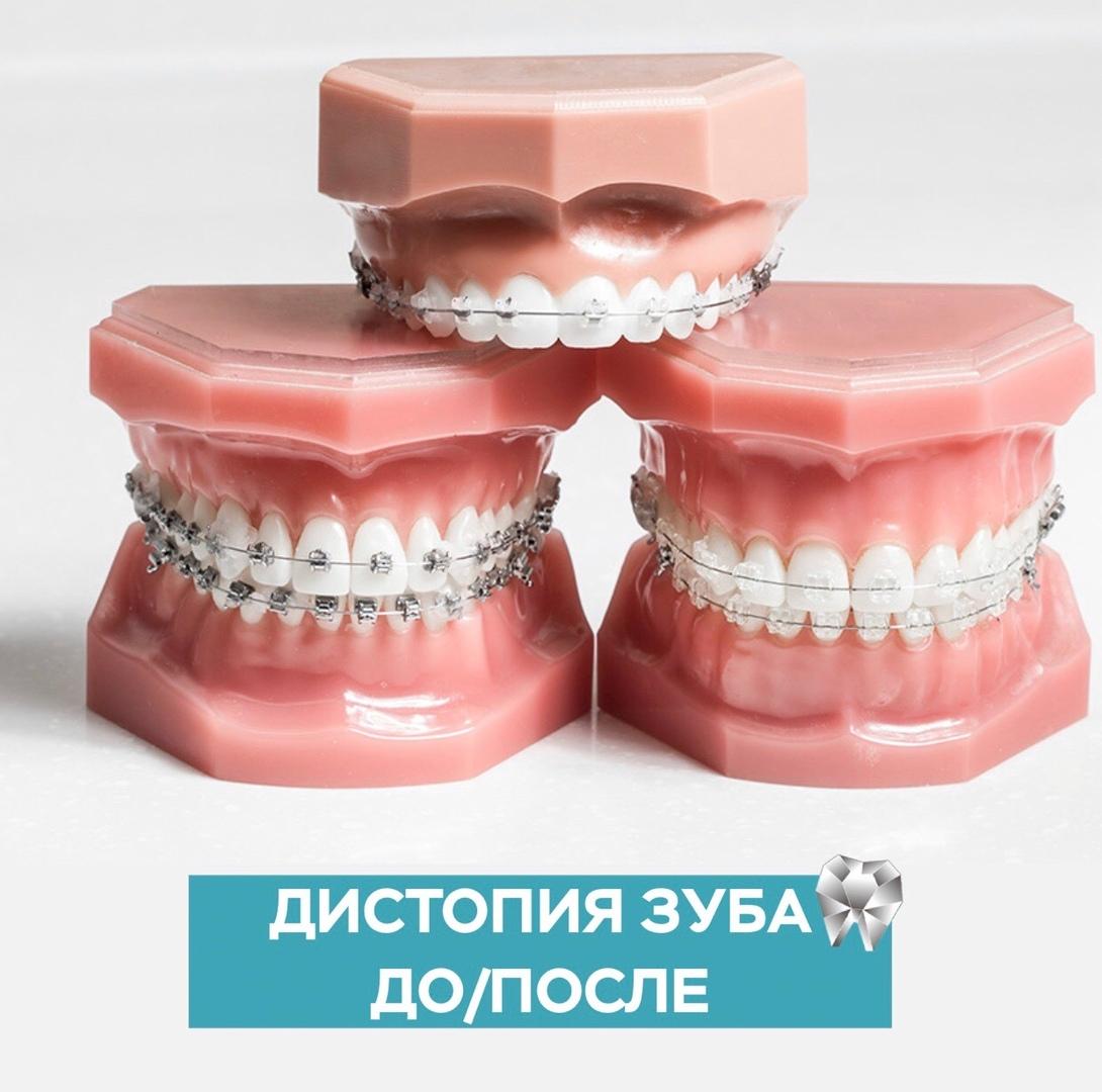 Дистопия зуба до/после в Уфе