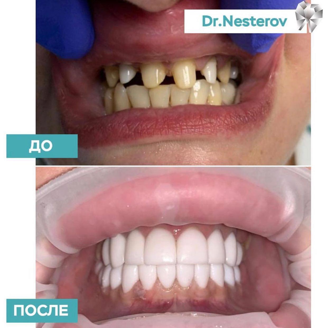 <p>Друзья, рады представить результат работы нашего стоматолога доктора Нестерова в Уфе