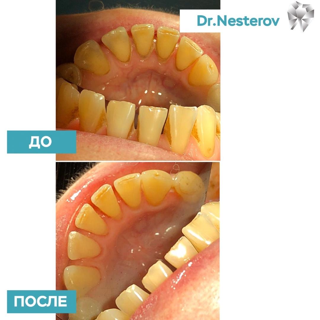 7 простых правил для здоровья зубов в Уфе