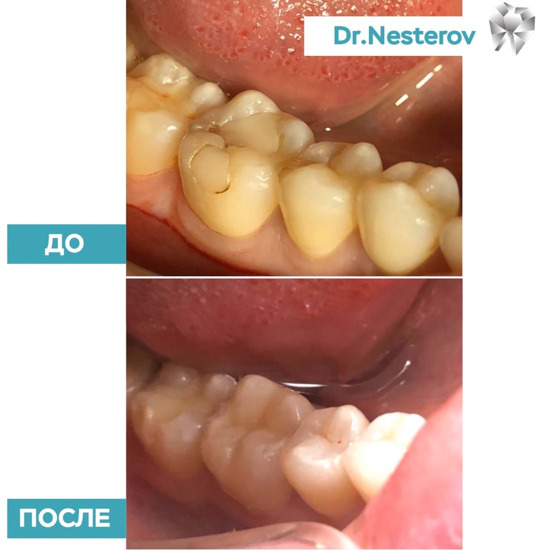 <p>Как важно своевременно лечить зубы! в Уфе