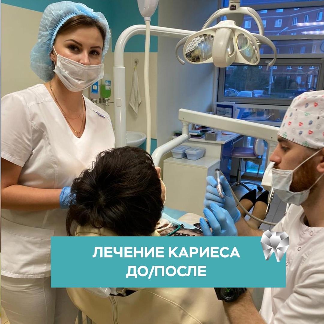 Проблемы с зубами, если вы давно не были у стоматолога! в Уфе