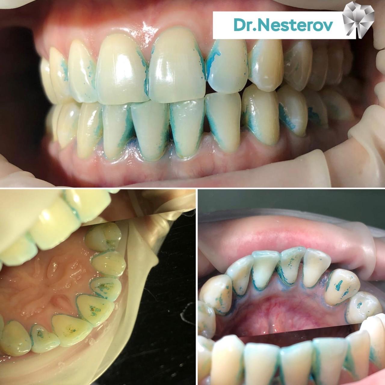 Профессиональная чистка зубов! в Уфе