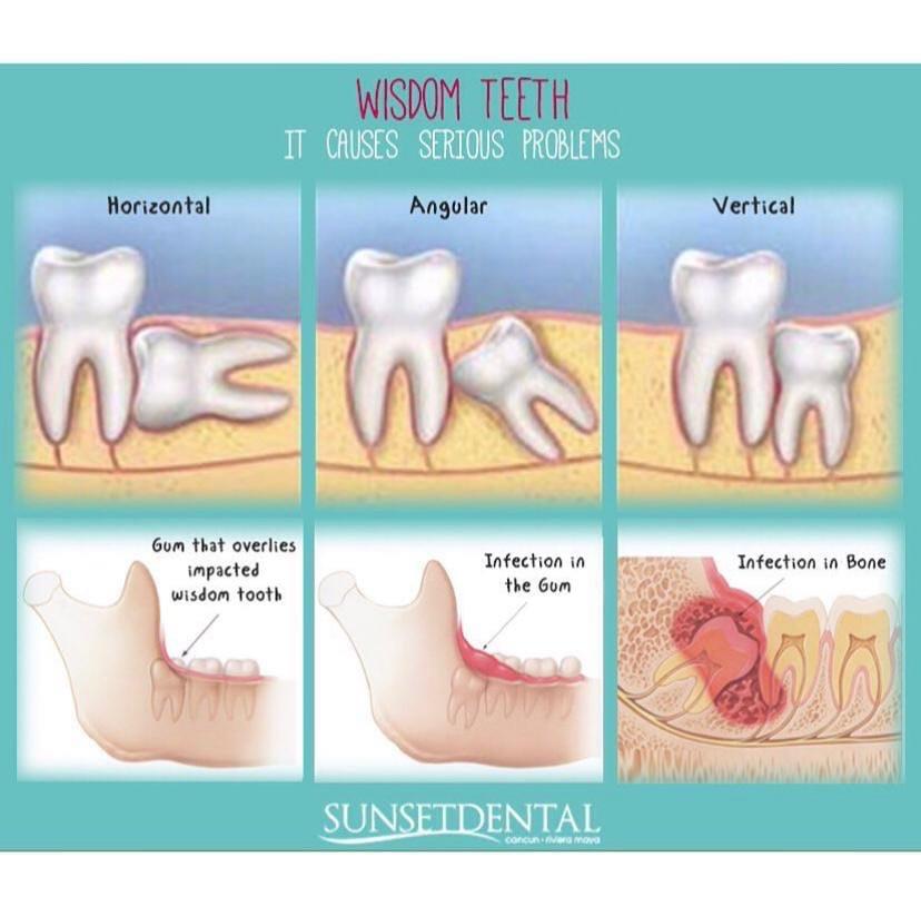 Зубы мудрости: что с ними делать в Уфе