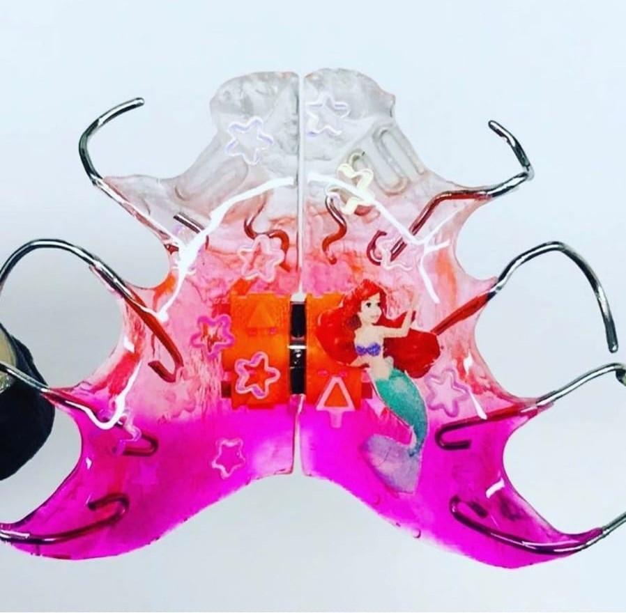 Ортодонтические пластинки в Уфе