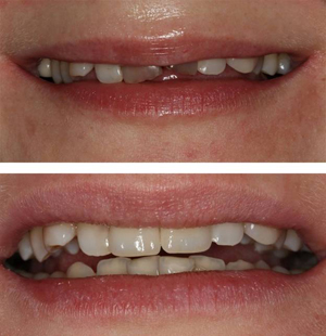 Реставрация зуба в Уфе