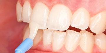 Реминерализация и фторирование зубов в Уфе
