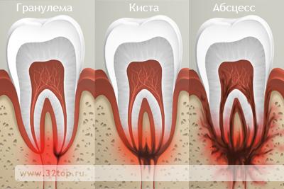 Лечение абсцесса зуба в Уфе