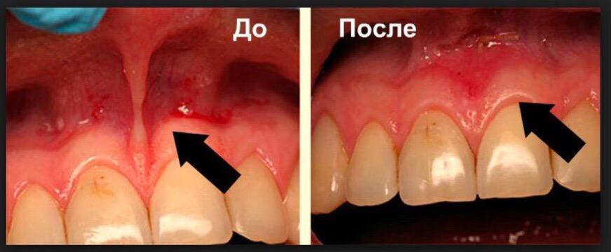 Операции на мягких тканях в Уфе