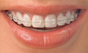 Эстетика зубов в Уфе