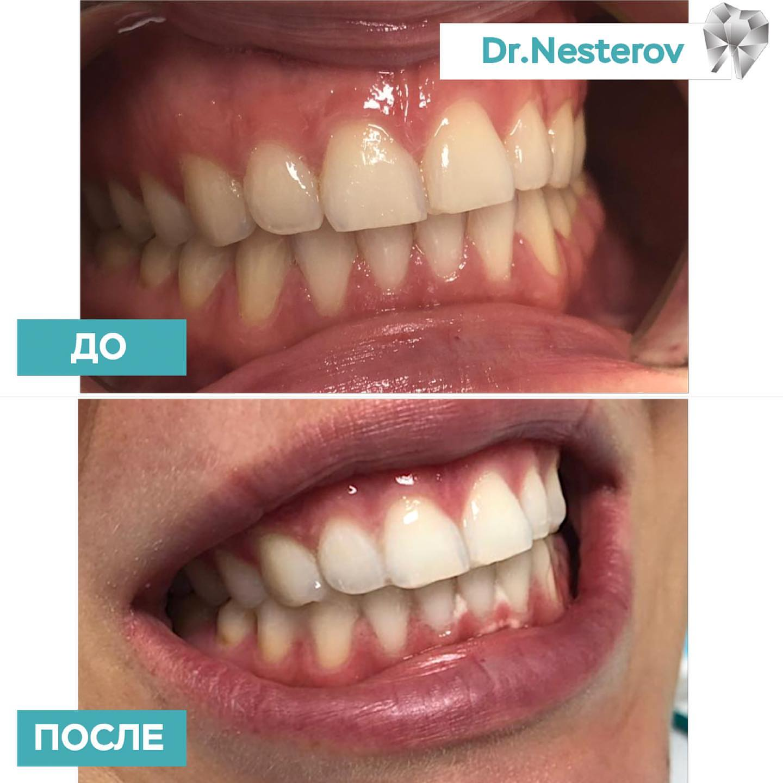 Профессиональное отбеливание зубов в Уфе